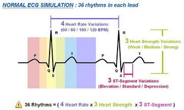Taiwan ECG SIMULATOR - 12 lead ECG signal with adjustable