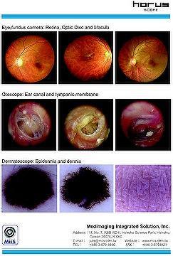 Digital hand-held diagnostic scope set:Digital Eye-Fundus Camera,Digital ophthalmoscope,Digital Otoscope,Digital Dermatoscope,Digital Speculum,Digital endoscope adapter and camera module