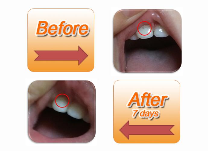 INTELLIGENT Saliva Enzyme fresh strawberry edible dental toothpaste for children