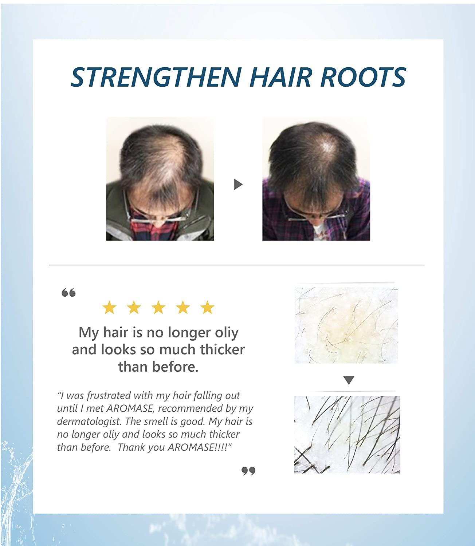 Production loss sebum hair Hair Follicles